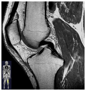 Magnetic Resonance Image of a knee