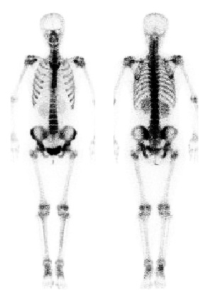 Nuclear Medicine whole body Nuclear Medicine bone scan