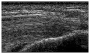 Ultrasound of a muscle
